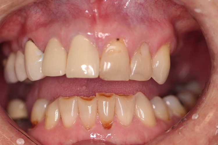 Porcelain Veneers and Crowns 1