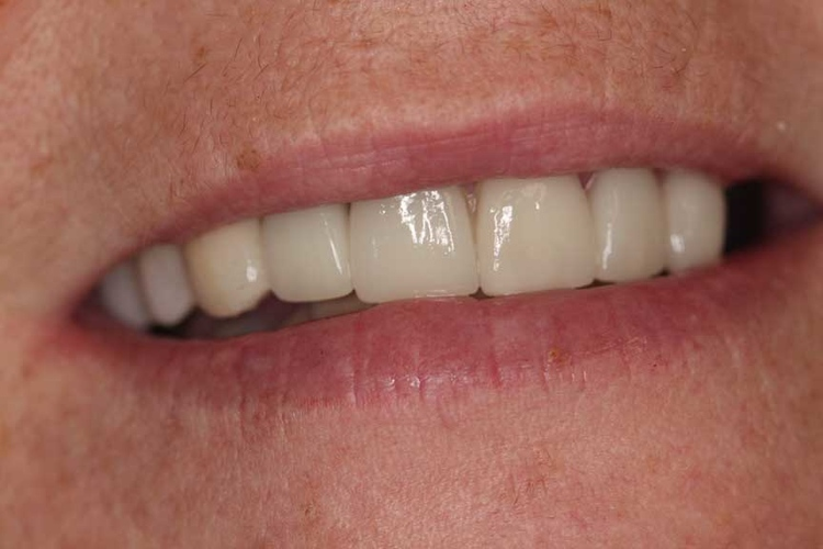 Porcelain Veneers and Crowns 2