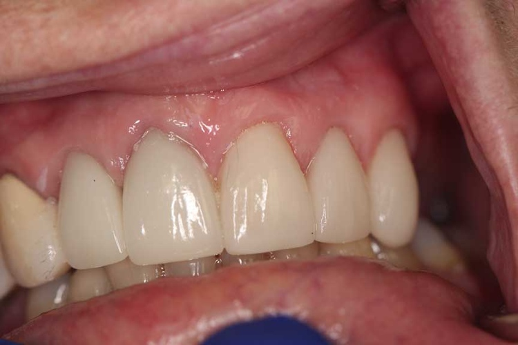 Porcelain Veneers and Crowns 3